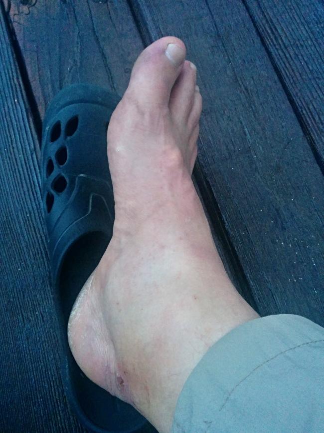 Oteklá noha